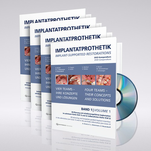 "Picture of Compendium ""IMPLANT-SUPPORTED RESTORATIONS"", D/EN, DVD-set"