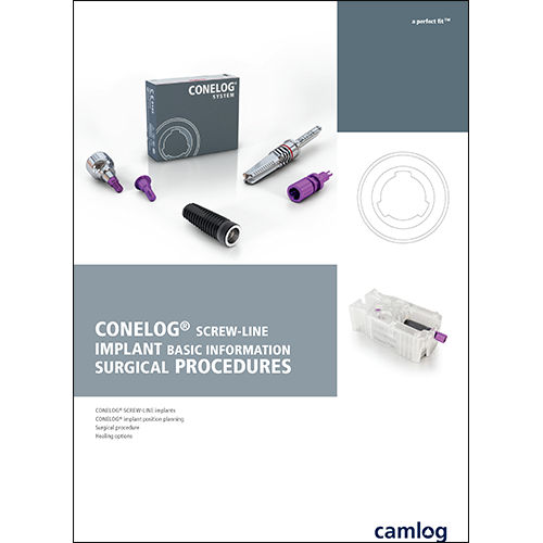 Picture of CONELOG® SCREW-LINE Implant Surgical Procedures