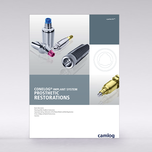 Picture of CONELOG® Implant System prosthetic restorations