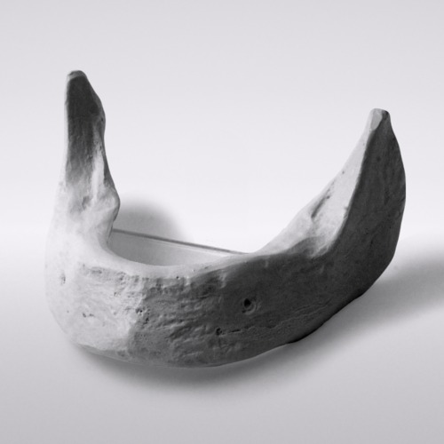 Picture of Edentulous mandible including mounting plate