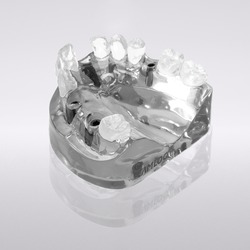 Picture of CONELOG® Demo model, upper jaw, 4 implants Ø 4.3 mm
