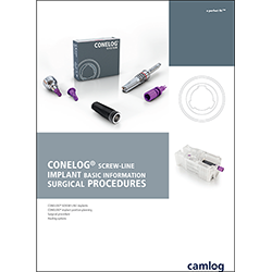Picture of CONELOG® SCREW-LINE Implant basic information surgical procedures