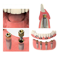 Picture of Edentulous Images