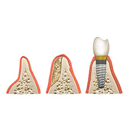 Picture of Bone Grafting Images