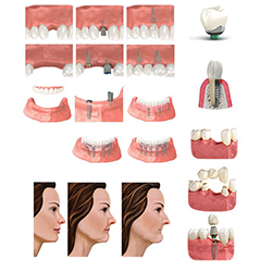 Picture of Tooth Replacement Option Images